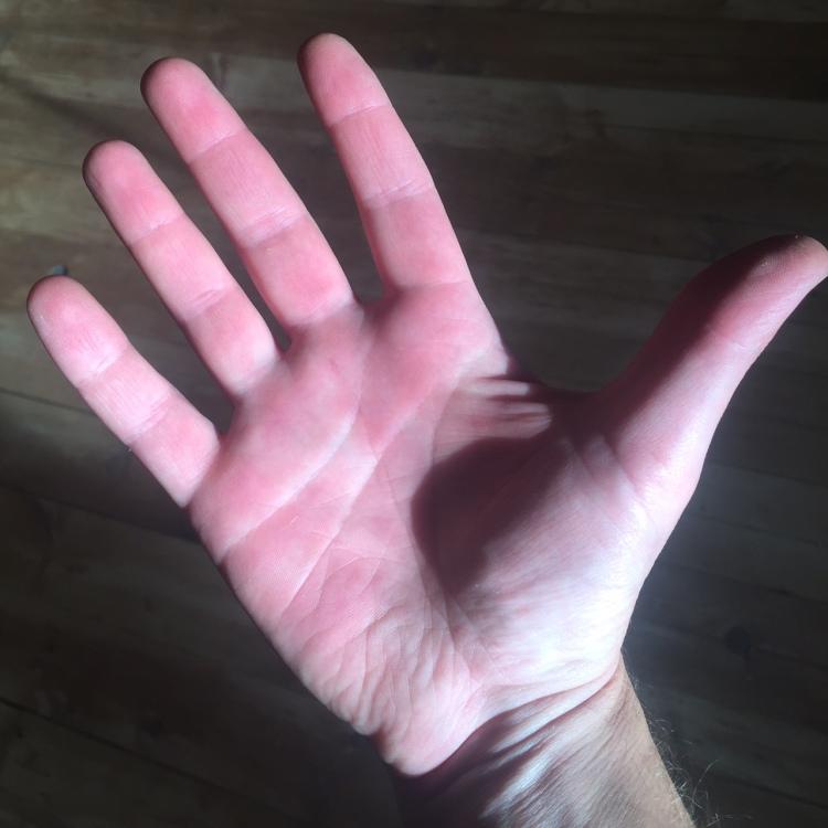 My not-so-delicate musician hands